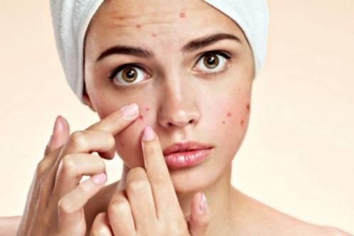 8 درمان خانگی مفید برای مشکلات پوستی