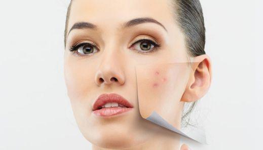 علت ایجاد لکه روی پوست و راه درمان آن